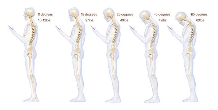 smartphone neck strain